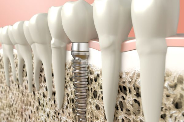 expertos en implantologia en Bilbao Cido Dental